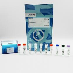 Total TBK1 cellular kit