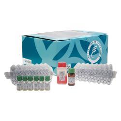 Dosage immunoradiométrique de l'antigène CA 15-3