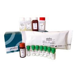 Sex Hormone Binding Globulin immunoradiometric assay kit