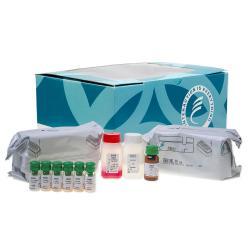 Active renin radioimmunometric assay kit